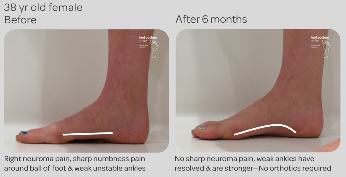 0a4bbe114e Morton's Neuroma pain resolved non-surgically with no orthotics